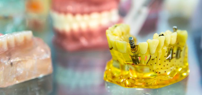 Prótese Dentária Removível: definição, fabricação e higiene